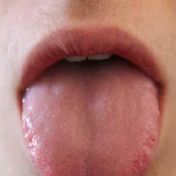 Piecze język? To może być nowotwór głowy i szyi. Kolejna Środa z profilaktyką