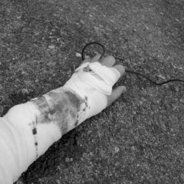 Wypadek w pracy i świadczenia z ZUS