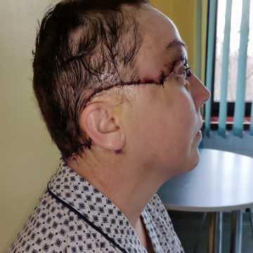 Kobieta, która uległa wypadkowi w zakładzie w radomszczańskiej strefie przeszła zabieg  replantacji skalpu